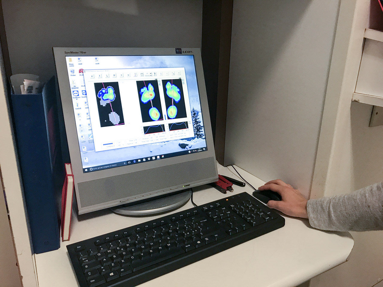 Software di analisi della postura